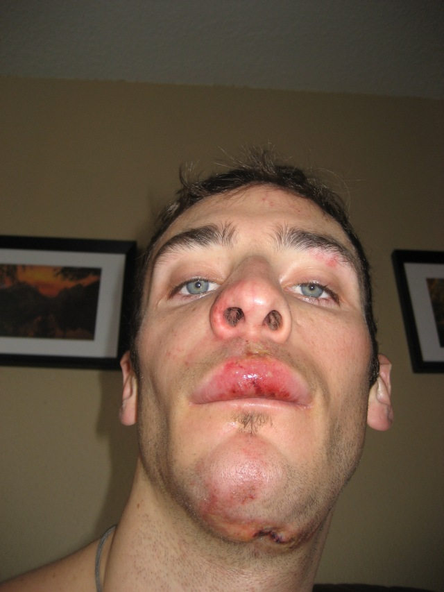 With a broken face after a gnarly ski crash. Circa 07'